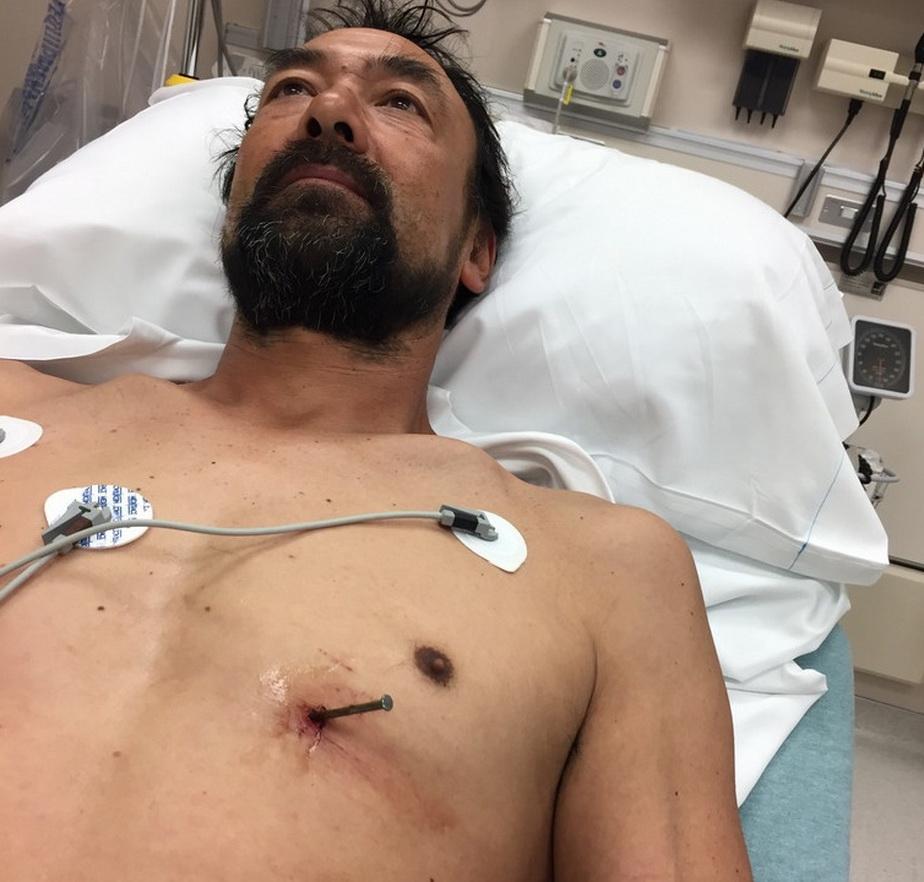 FOTO A condus cu un cui de 9 cm în inimă până la spital