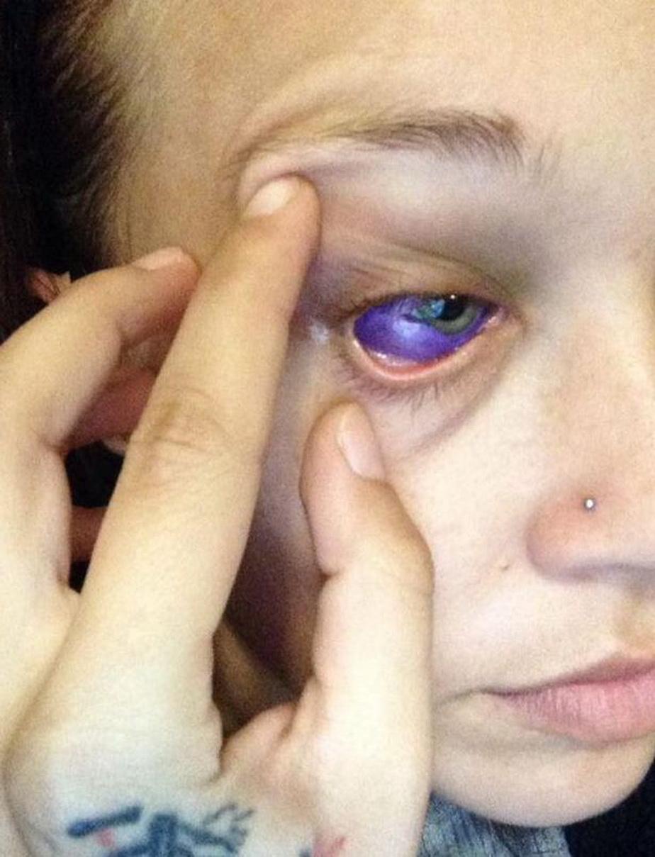 Îți mai amintești de tânăra care s-a tatuat în ochi? E șocant ce urmează să i se întâmple!