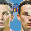 Szukala, înainte și după accidentare, cu forma nasului serios avariată în urma loviturii primite