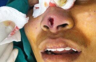 Fotografii șocante. Uite cum arată nasul unei femei după o operație nereușită!