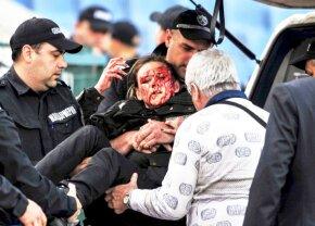 """SCENE ȘOCANTE! O polițistă plină de sânge la derby: """"Avea multe bucăți de sticlă pe față și în ochi. Nu a fost o petardă, ci o bombă"""""""