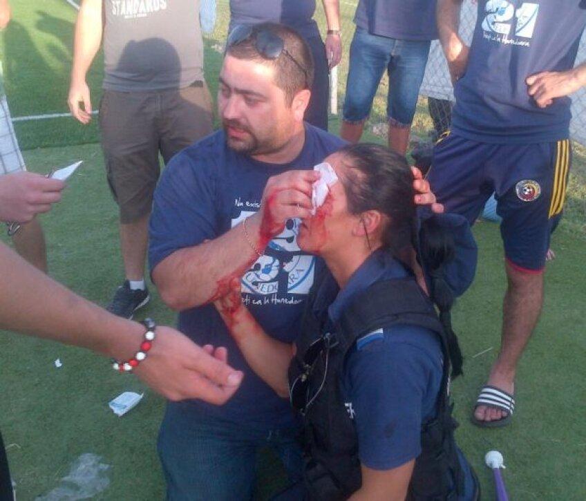 Jandarmerița lovită a primit primele îngrijiri medicale de la un suporter hunedoarean Foto: glasul-hd.ro