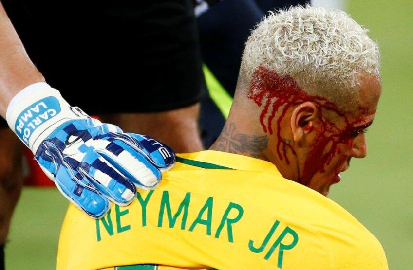 Neymar, plin de sânge // FOTO Reuters