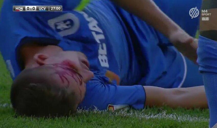 FOTO: Captură M4 Sport // Bancu, plin de sânge în meciul cu Honved