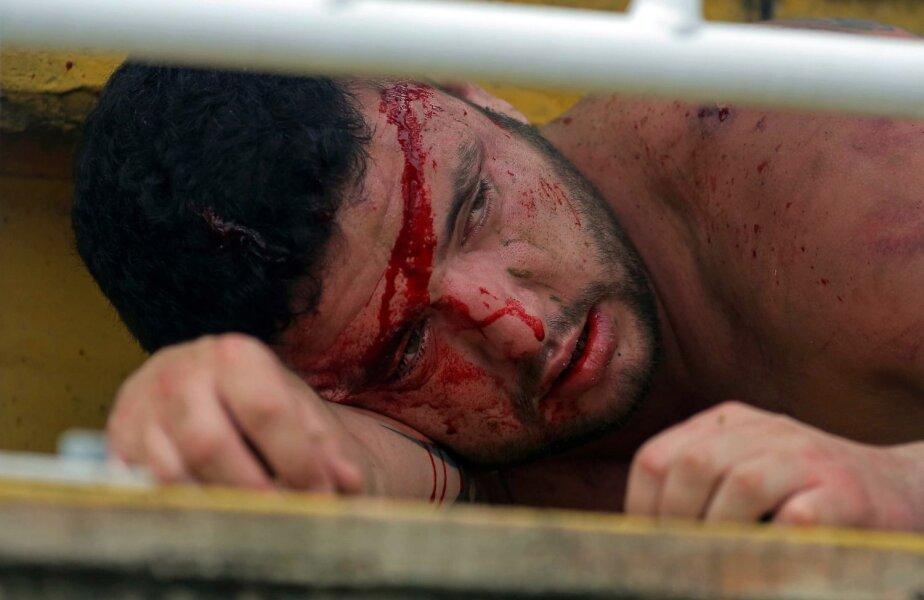 Sîngele îi brăzdează fruntea. De-abia mai deschide ochii. E zdrobit // Foto: MediafaxFoto/AFP